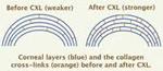 Corneal Collagen Crosslinking Surgery