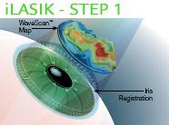 |Laser Vision Correction