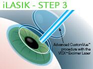 iLasik Surgery