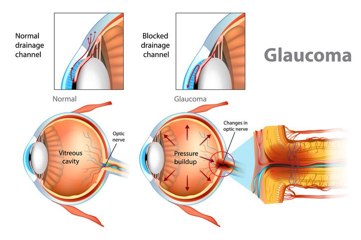 Glaucoma Tratment