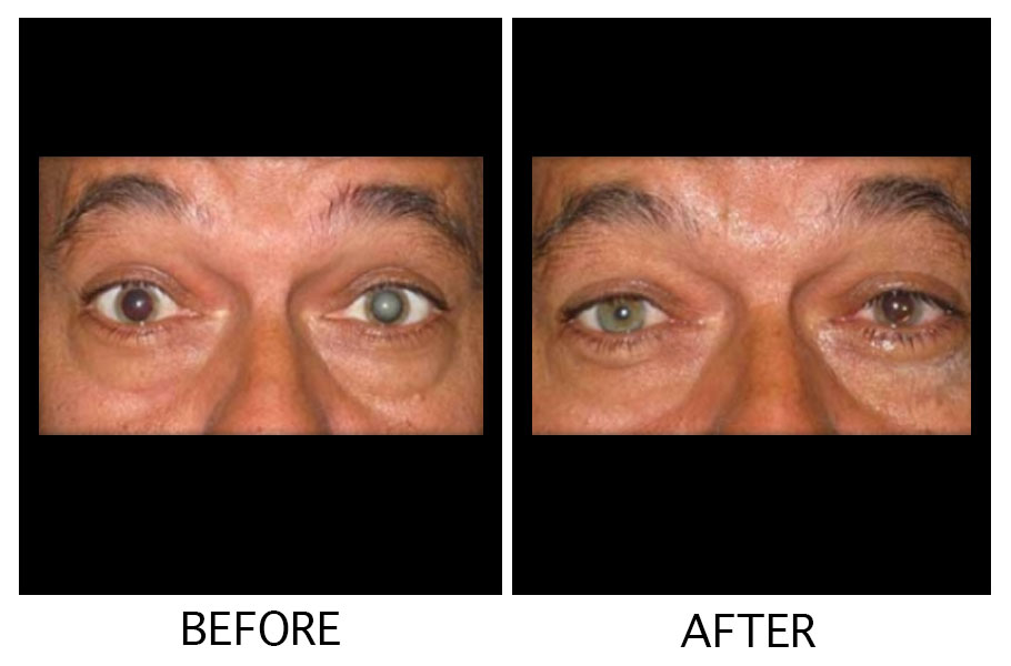 cataract Before After Surgery