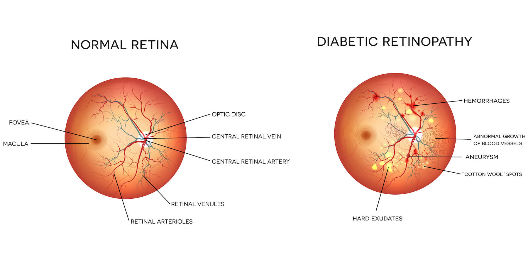 Retinopathy vector