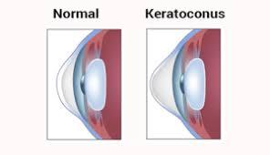 Keratoconus (from greek: kerato- horn, cornea; and konos cone)