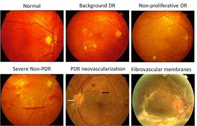 Diabetic Retinopathy Laser reatment