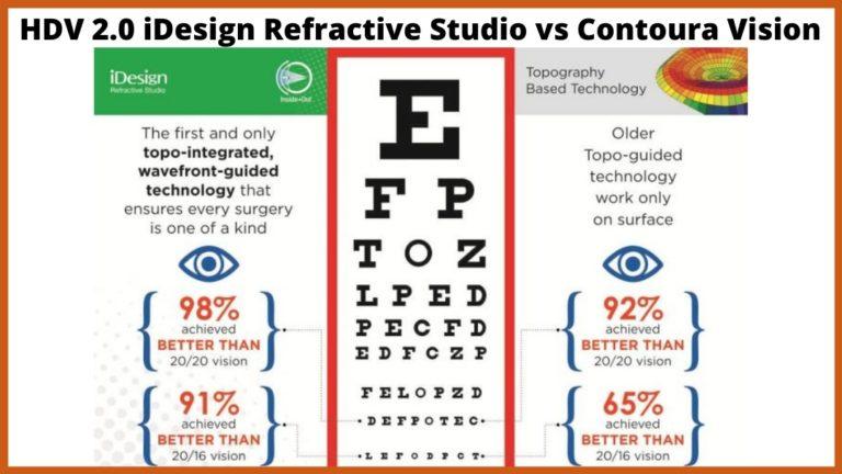 idesign refractive studio vs contoura vision